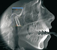 3d-Imaging-for-Implant-Placement-pic-01
