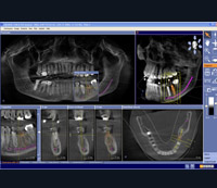 3d-Imaging-for-Implant-Placement-pic-03