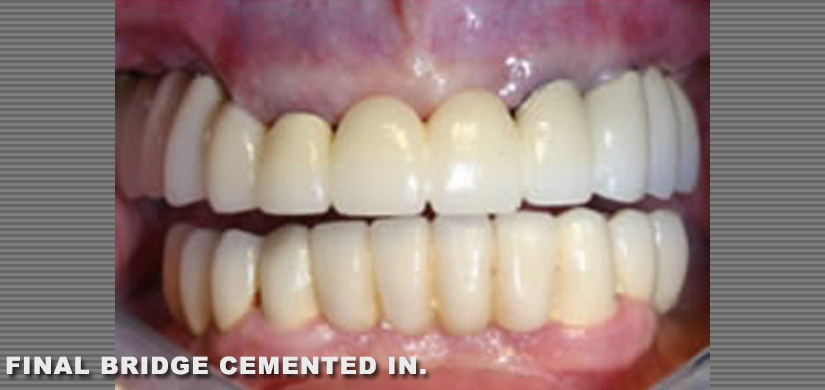 dental-implants-new-york-ny-case-report-restoration-of-3-back-teeth-pic-3