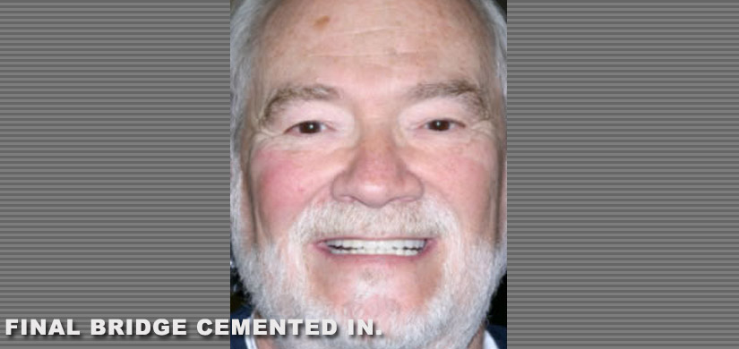 dental-implants-new-york-ny-case-report-restoration-of-3-back-teeth-pic-4