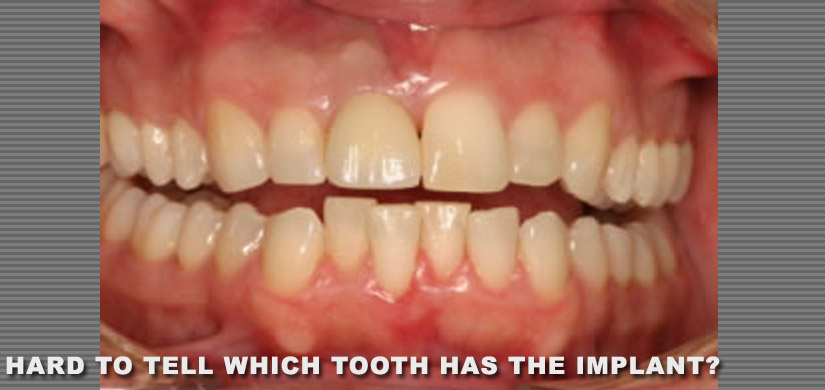 dental-implants-new-york-ny-case-report-restoration-of-front-tooth-pic-1