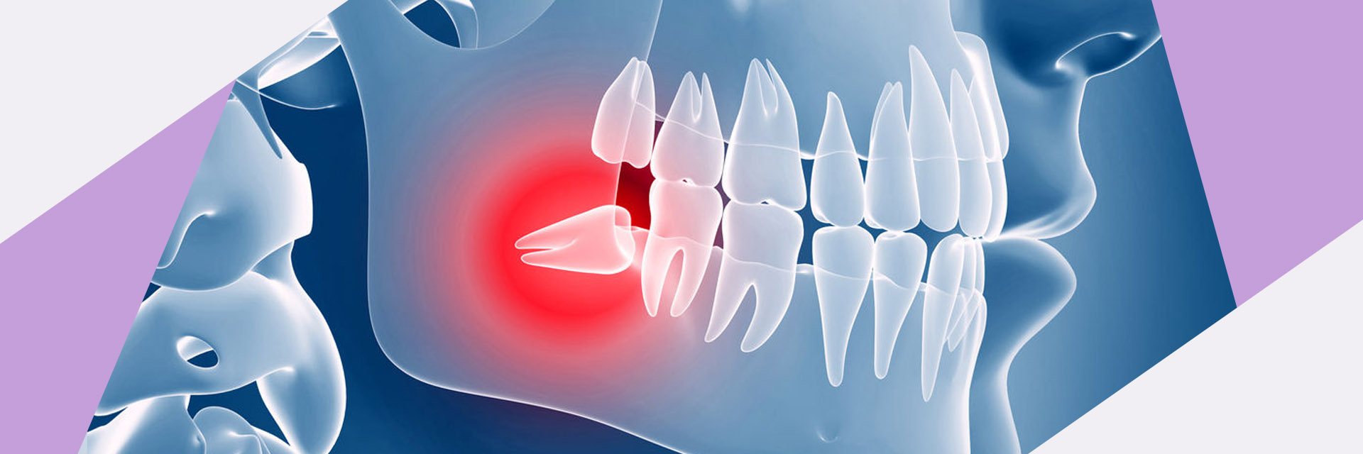 queensboro-dental-implants-flushing-ny-impacted-cuspid-Slider-05