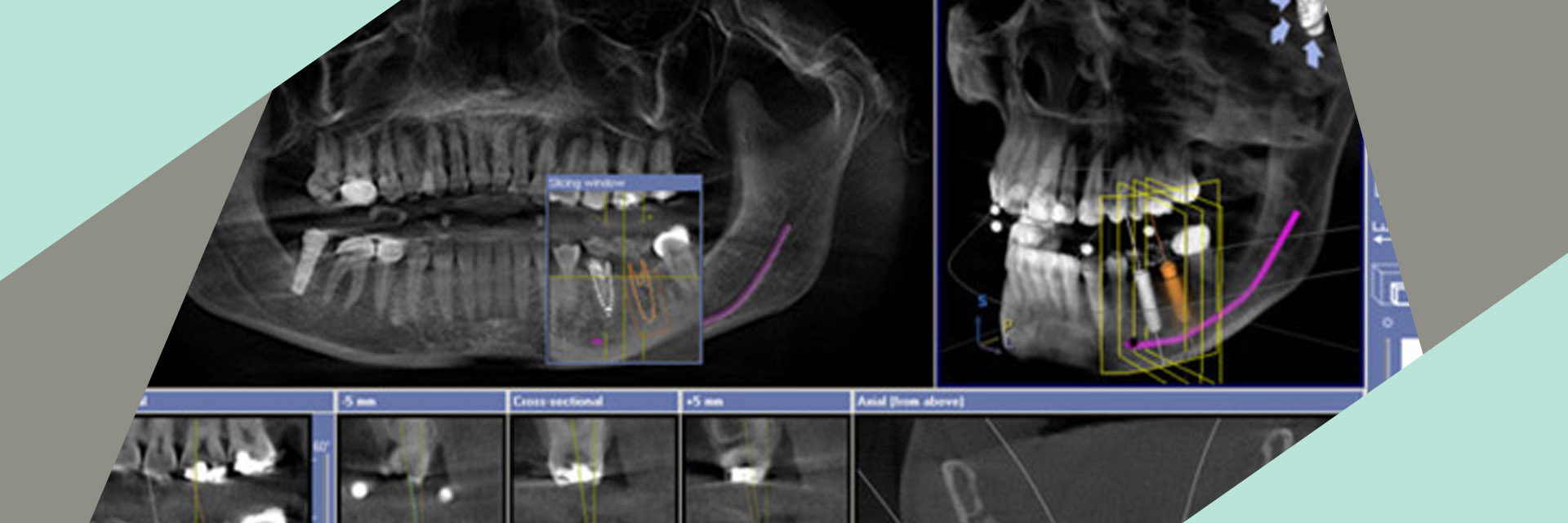 queensboro-dental-implants-flushing-ny-3d-imaging-for-implant-placement-slider-03_03